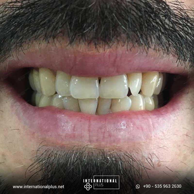 dental in turkey 1 1