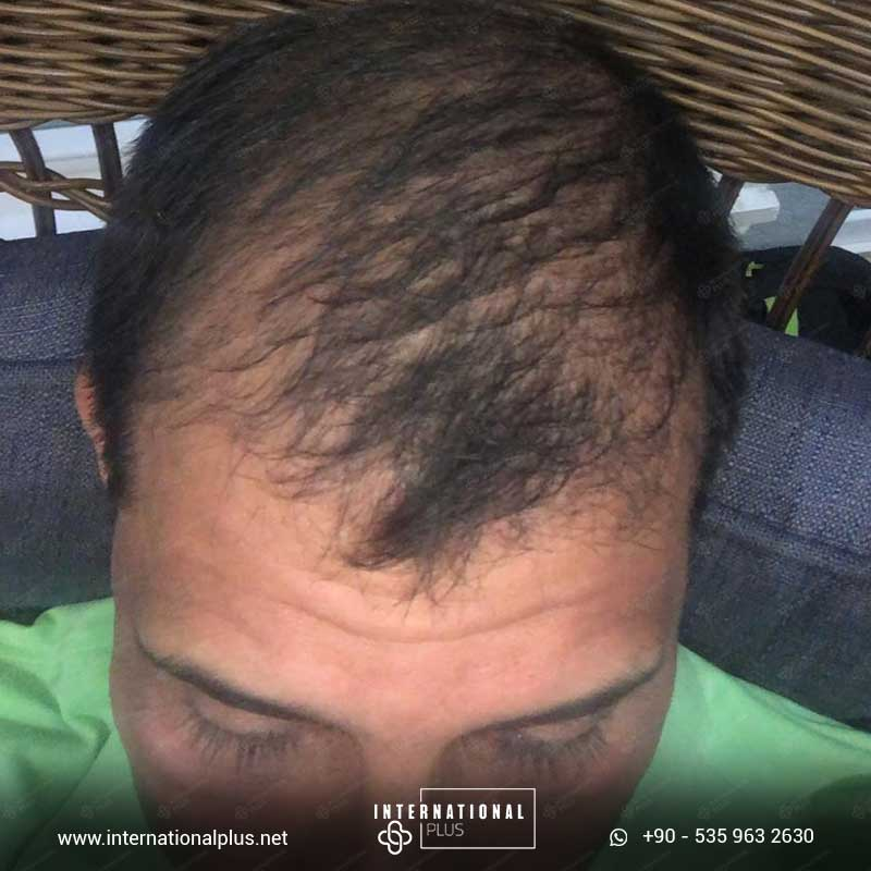 hair transplant in turkey 1