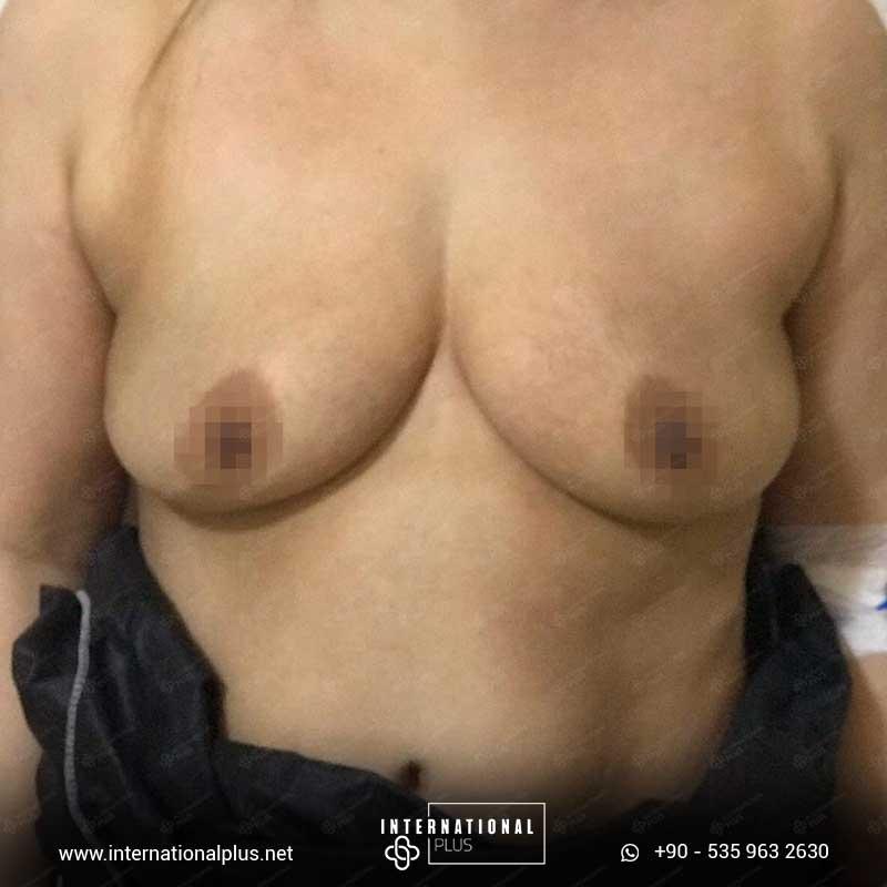 Breast Surgerys in turkey 1