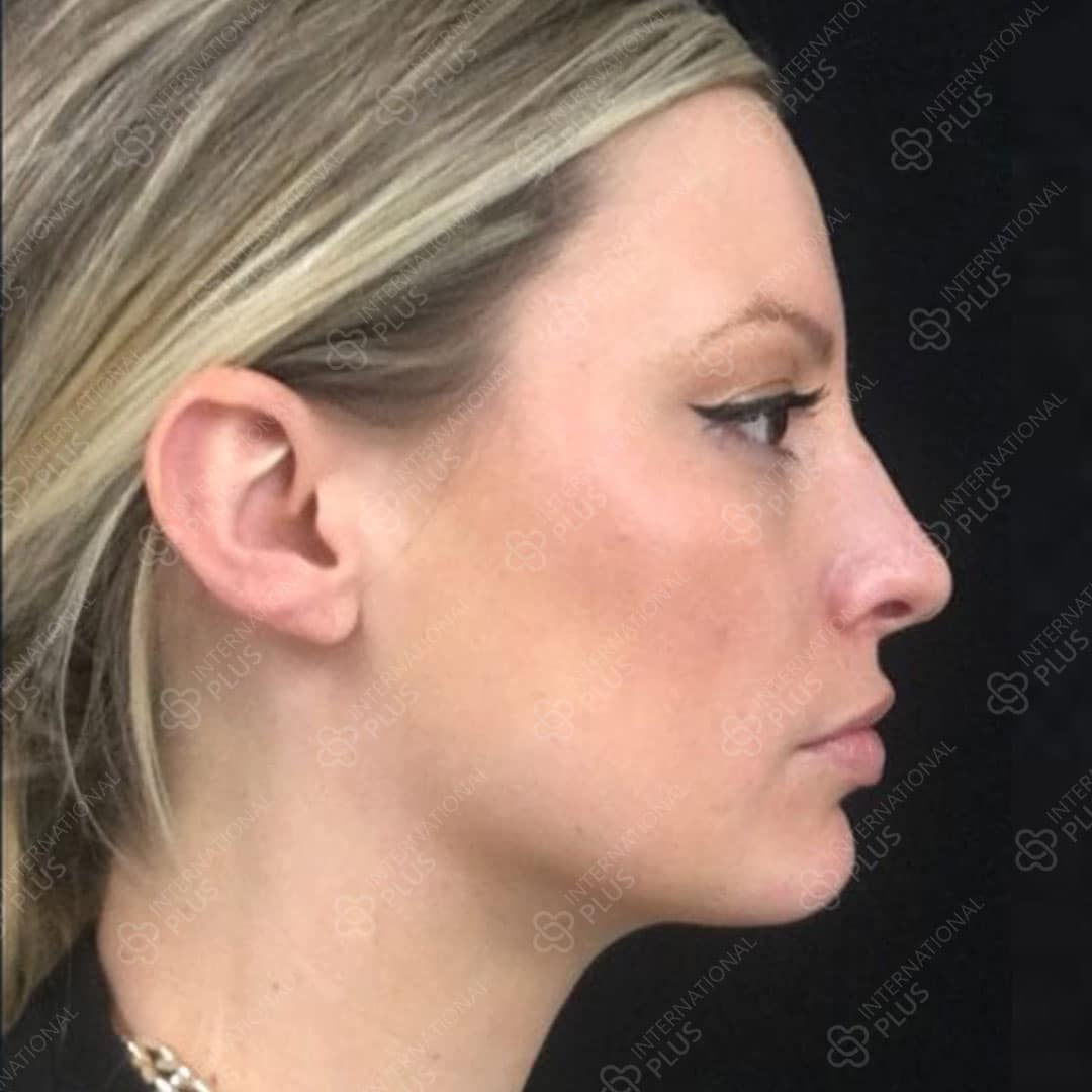 1-Chin-Surgery