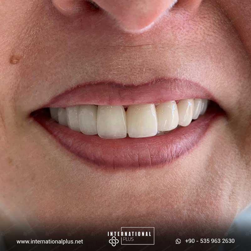 dental in turkey 1010