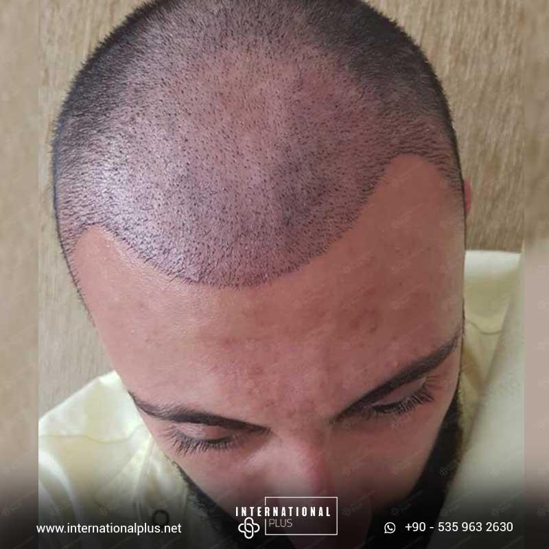 hair transplant in turkey 13