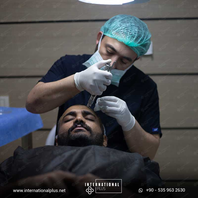 hair transplant in turkey 13