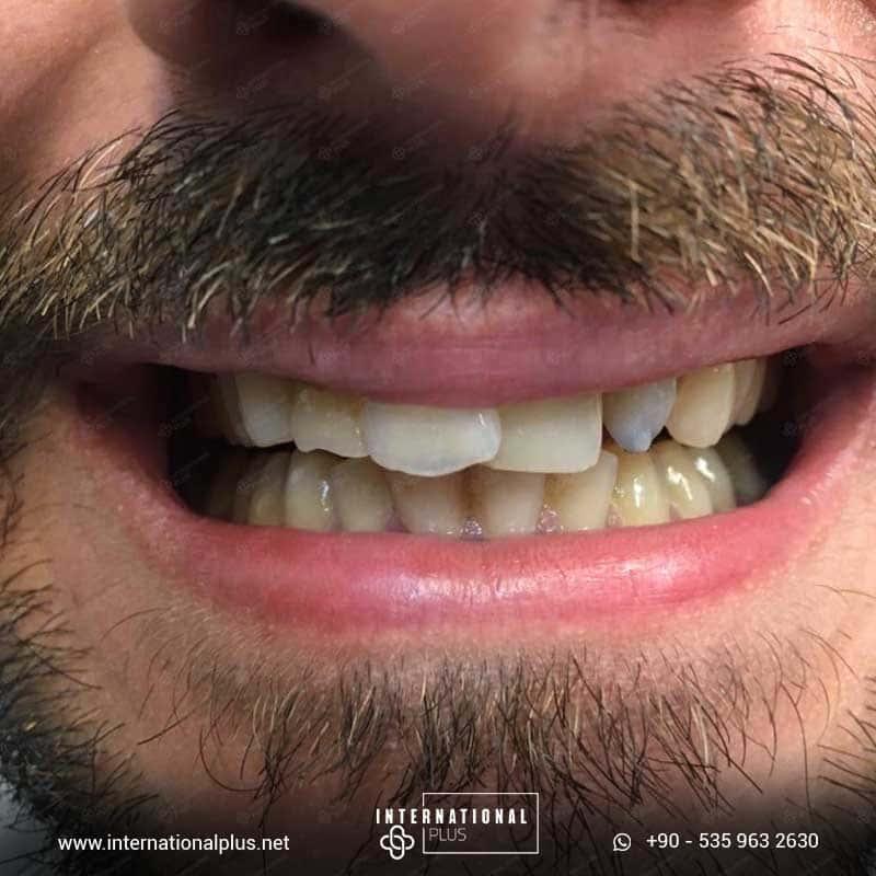 dental in turkey 13