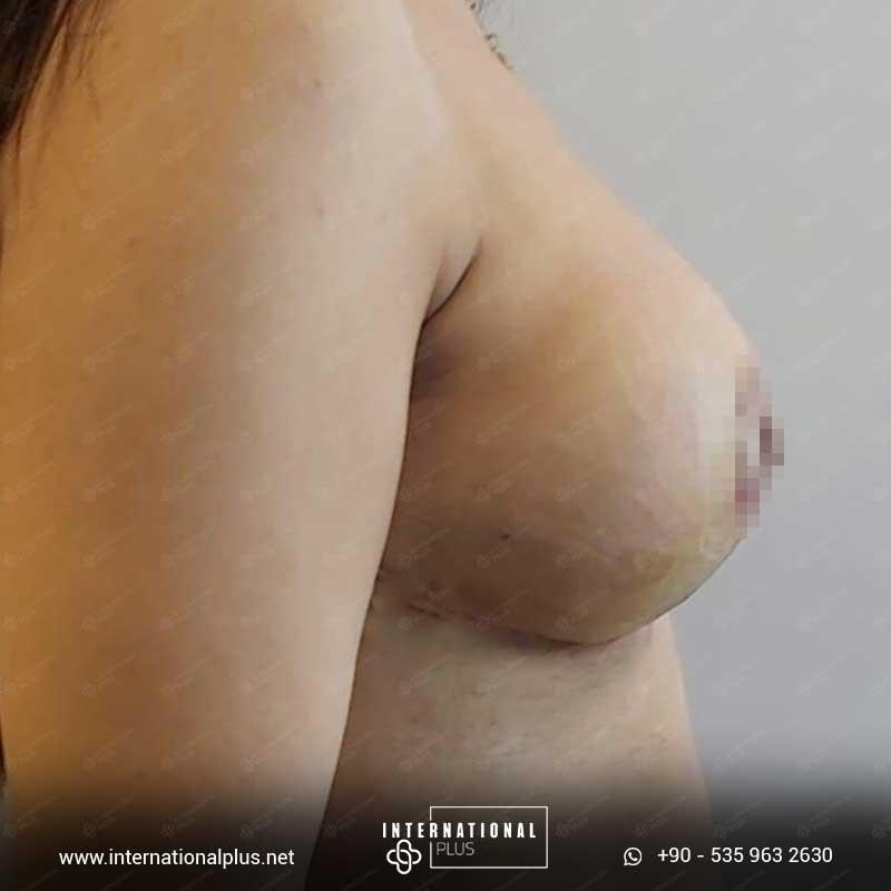 Breast Surgerys in turkey 8
