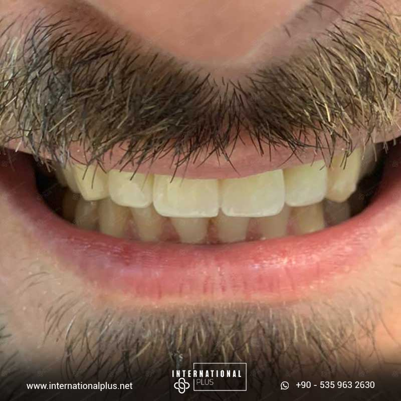 dental in turkey 14 14