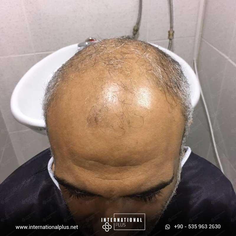 hair transplant in turkey 15