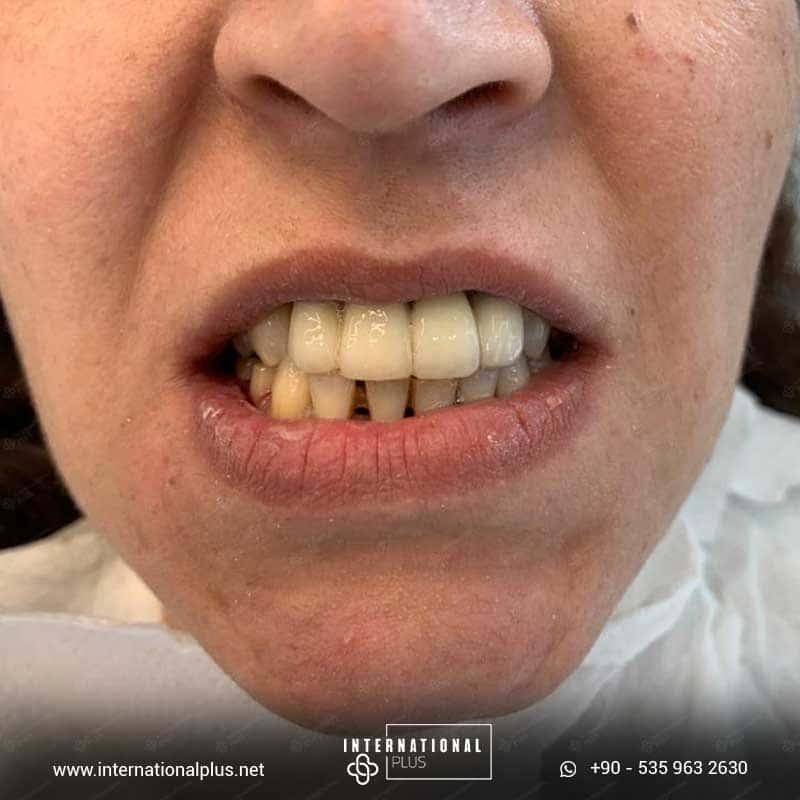 dental in turkey 15
