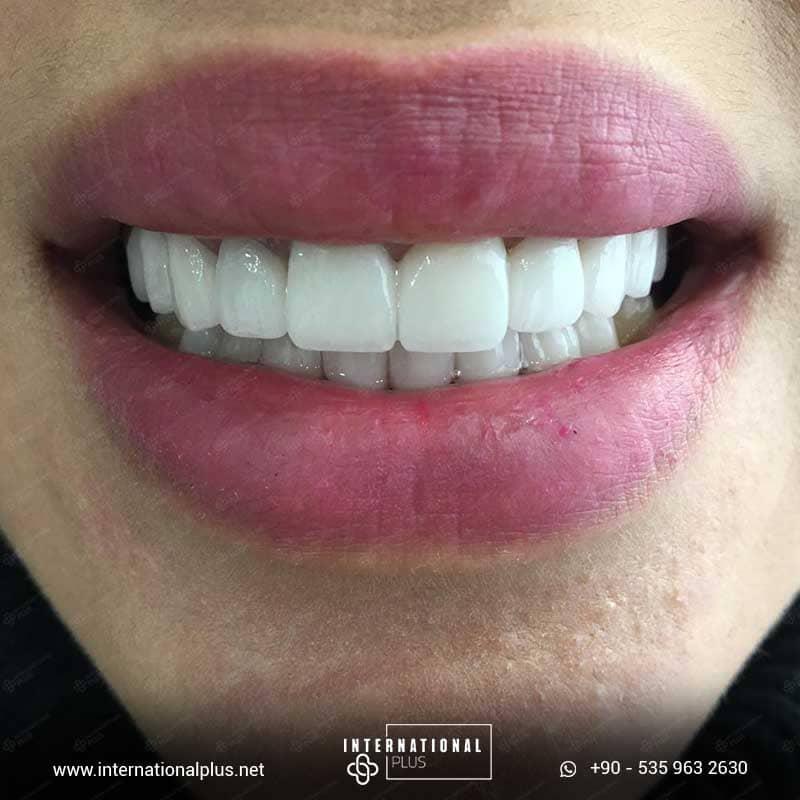 dental in turkey 18