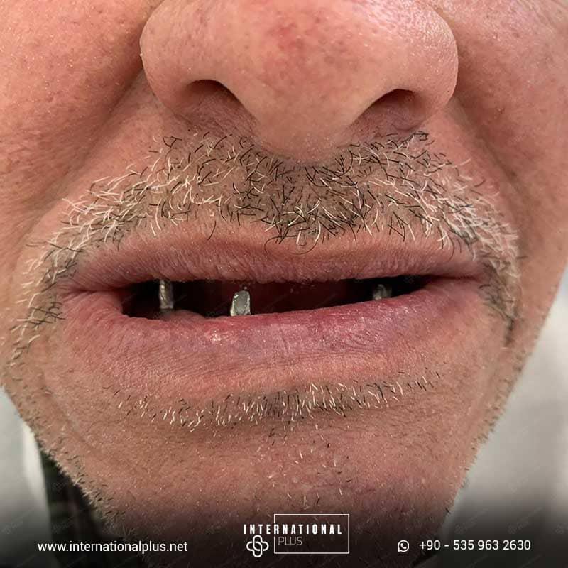 dental in turkey 19