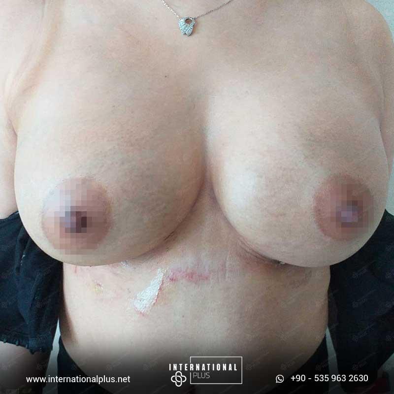 Breast Surgerys in turkey 2