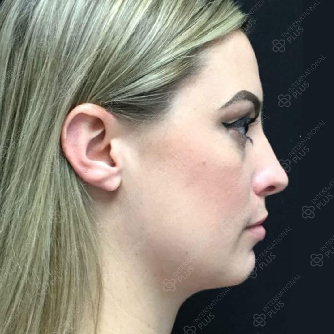 2-Chin-Surgery