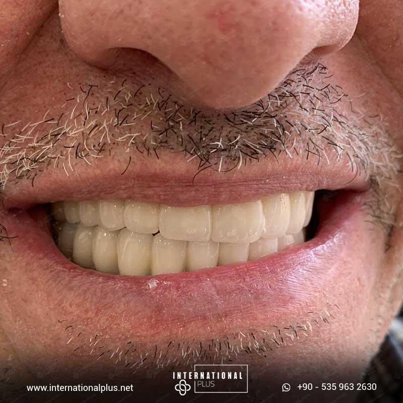 dental in turkey 20