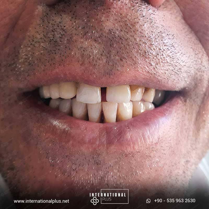 dental in turkey 21