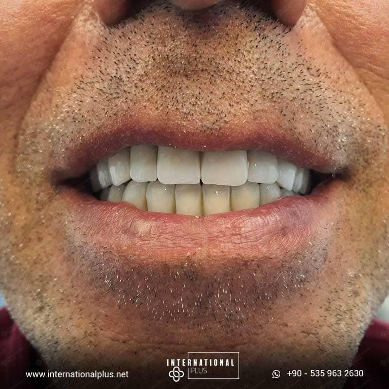 dental in turkey 22