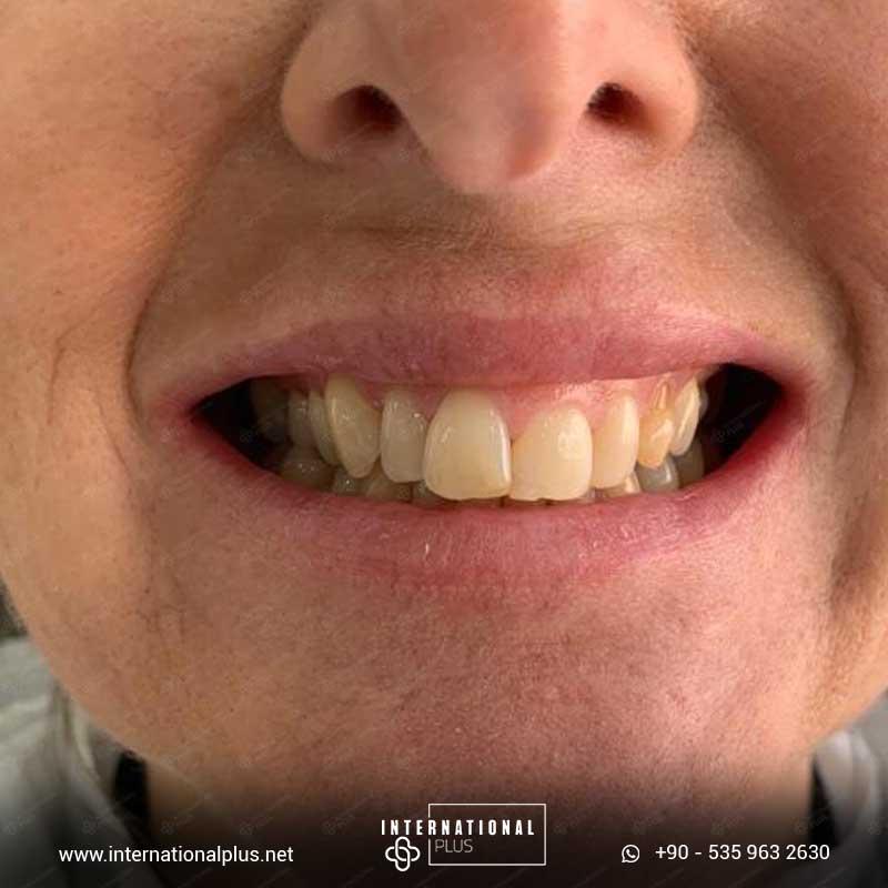 dental in turkey 23