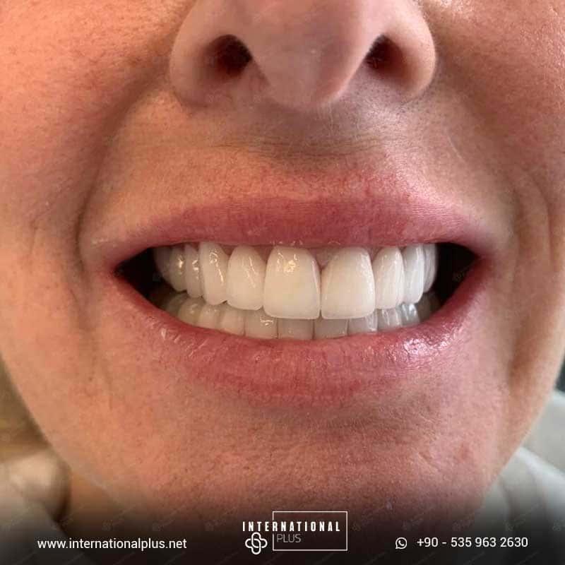 dental in turkey 24