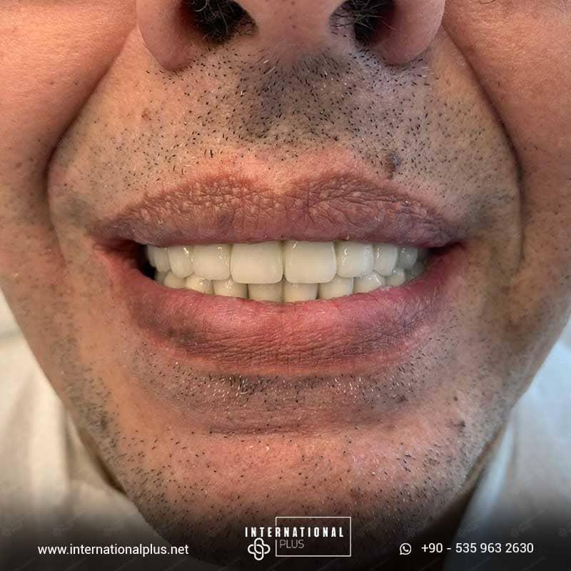 dental in turkey 28