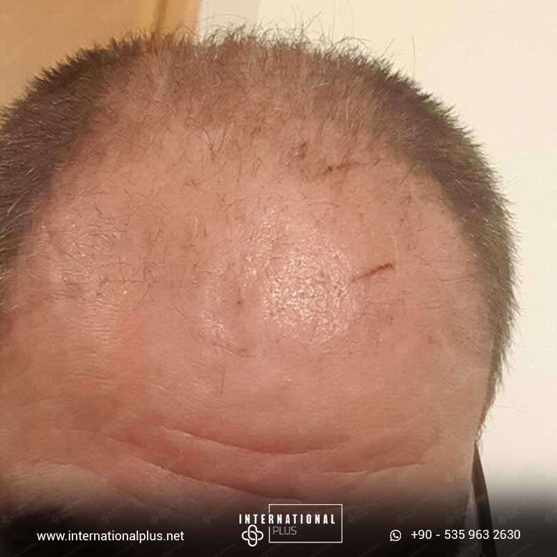 hair transplant in turkey 3