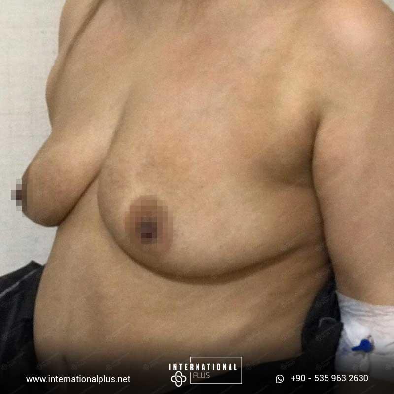 Breast Surgerys 9