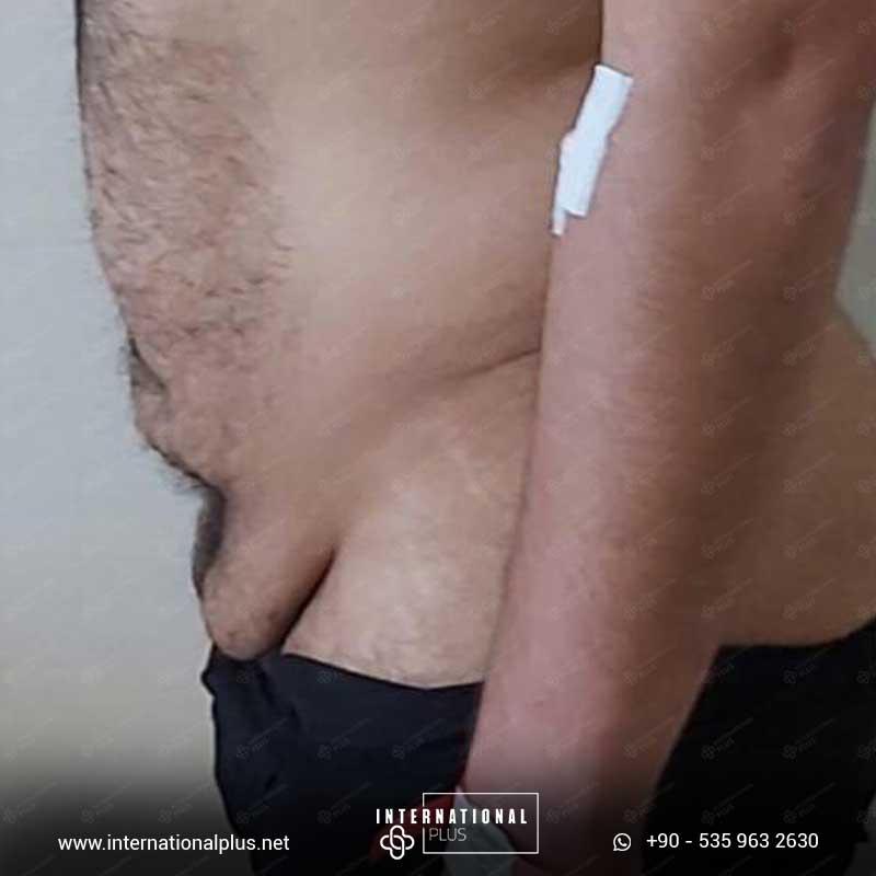 Tummy Tuck 3