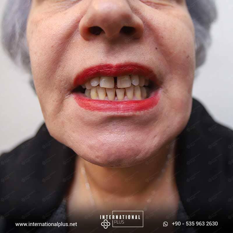 dental in turkey 3