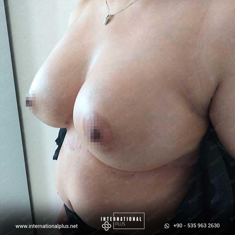 Breast Surgerys in turkey 10