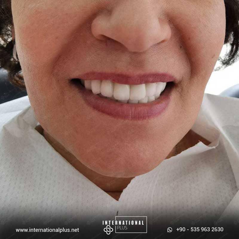 dental in turkey 4