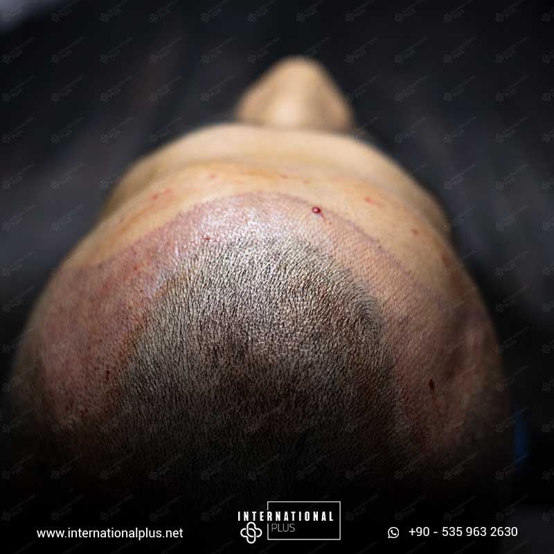hair transplant in turkey 5
