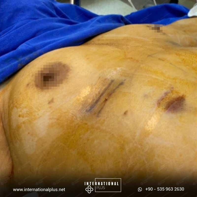 Breast Surgerys 11