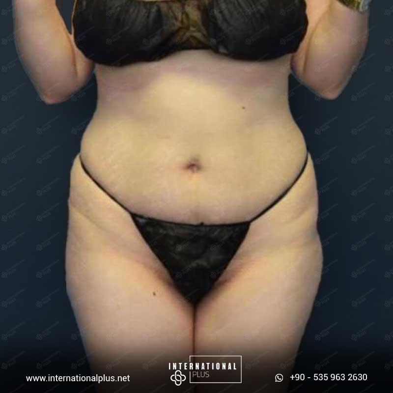 Liposuction 5