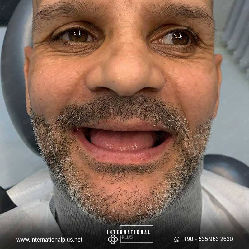 dental in turkey 5