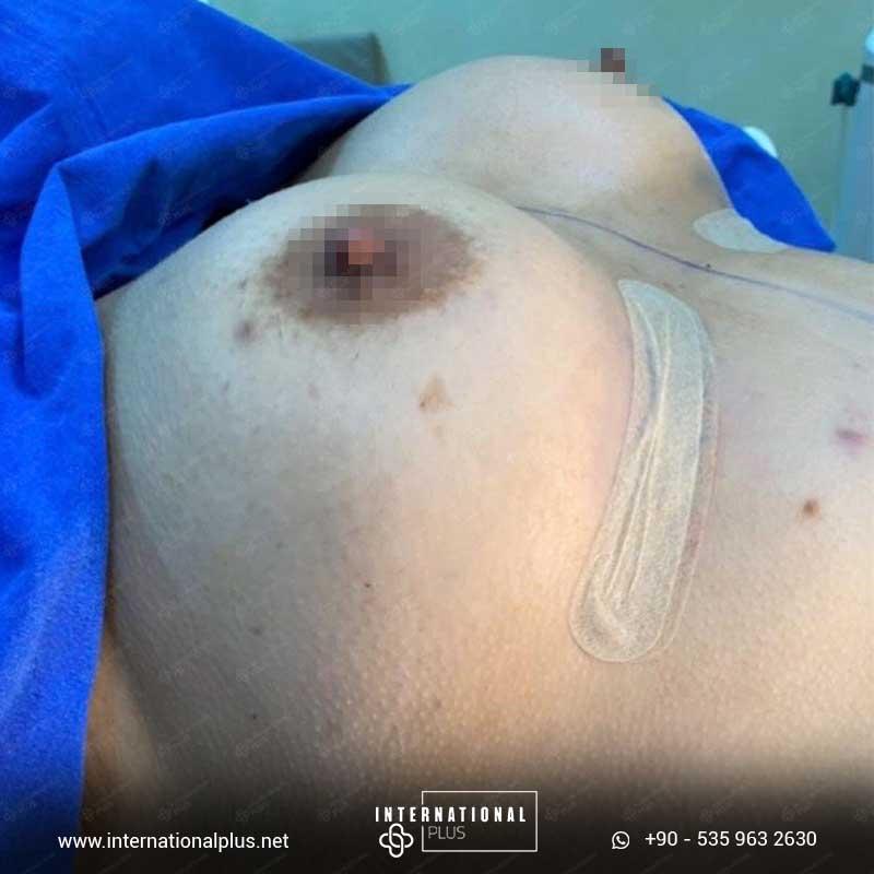 Breast Surgerys in turkey 12