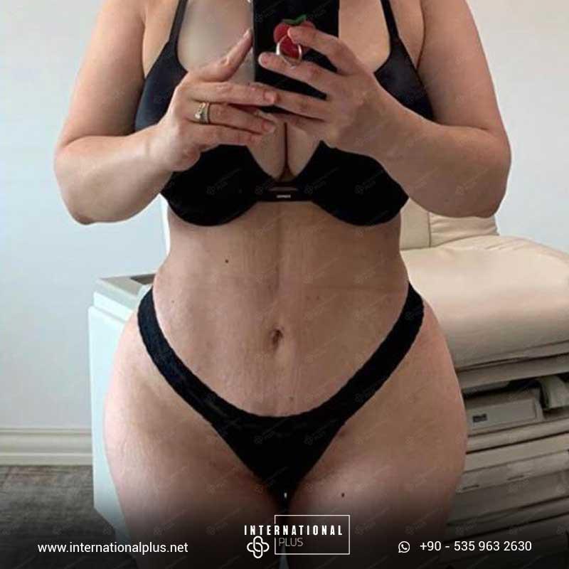 Liposuction 6