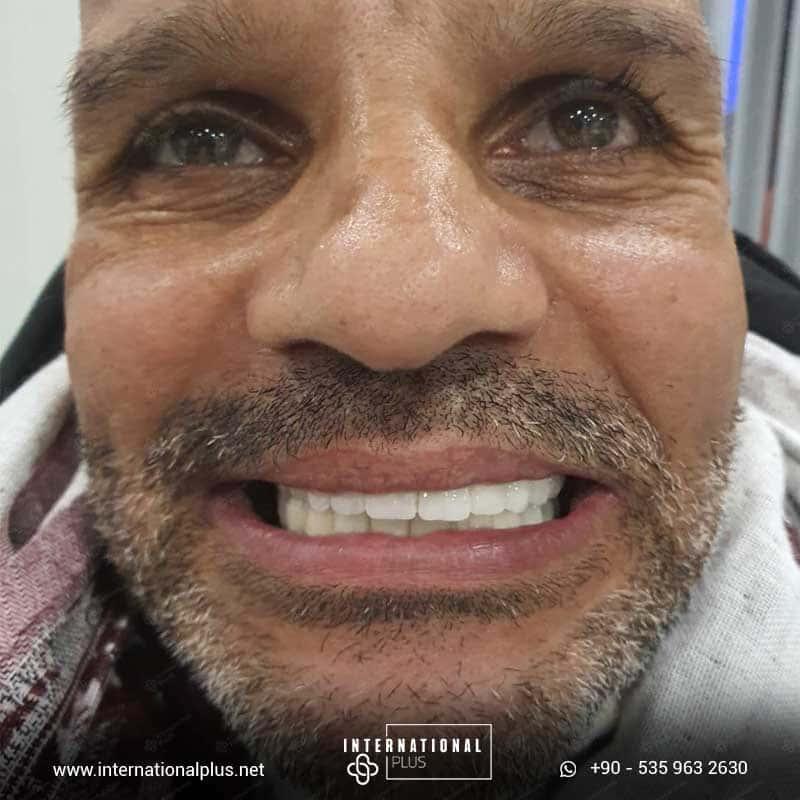 dental in turkey 6