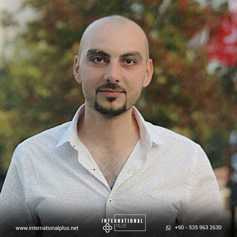 hair transplant in turkey 7