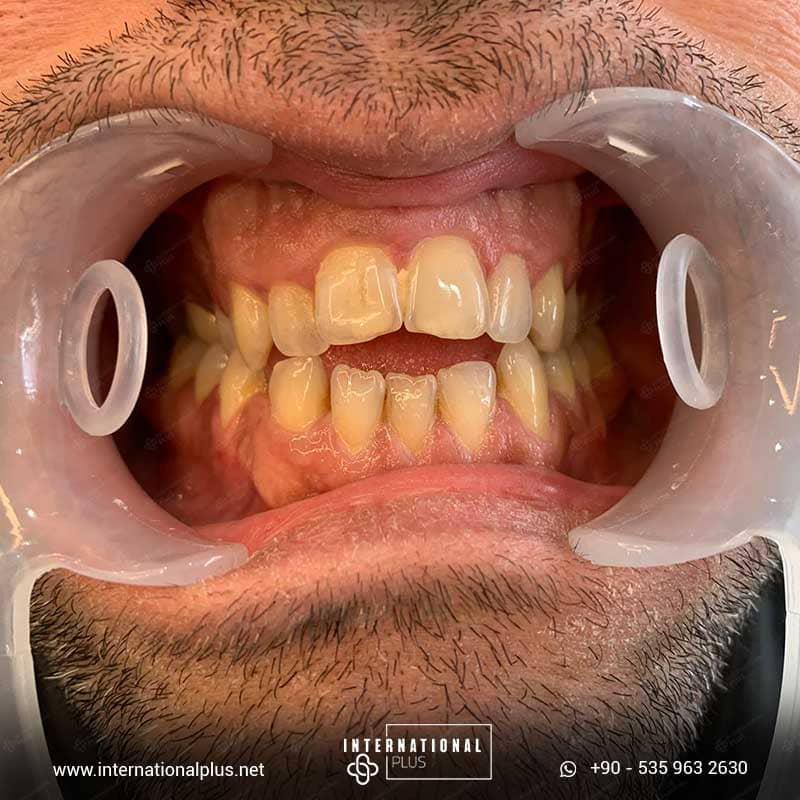 dental in turkey 7