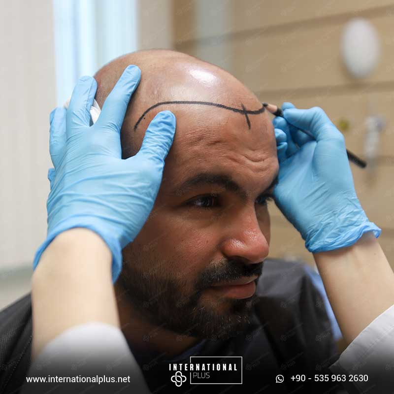 hair transplant in turkey 8