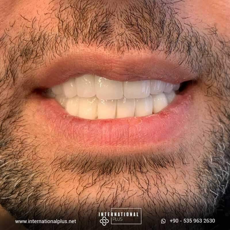 dental in turkey 88