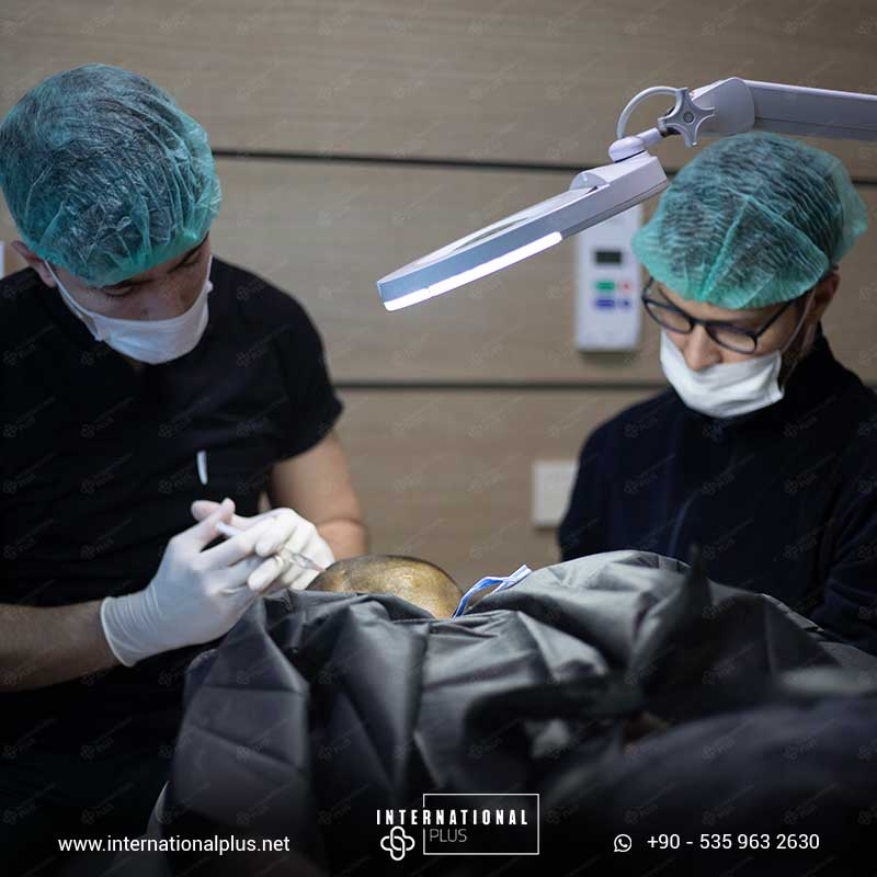 hair transplant in turkey 9