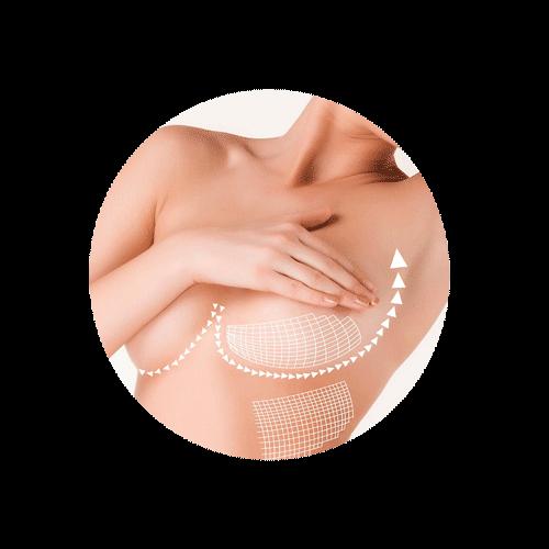 Breast Surgery btn