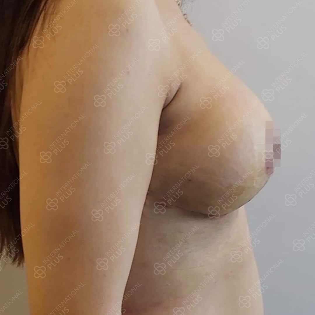 Breast lift ba 1