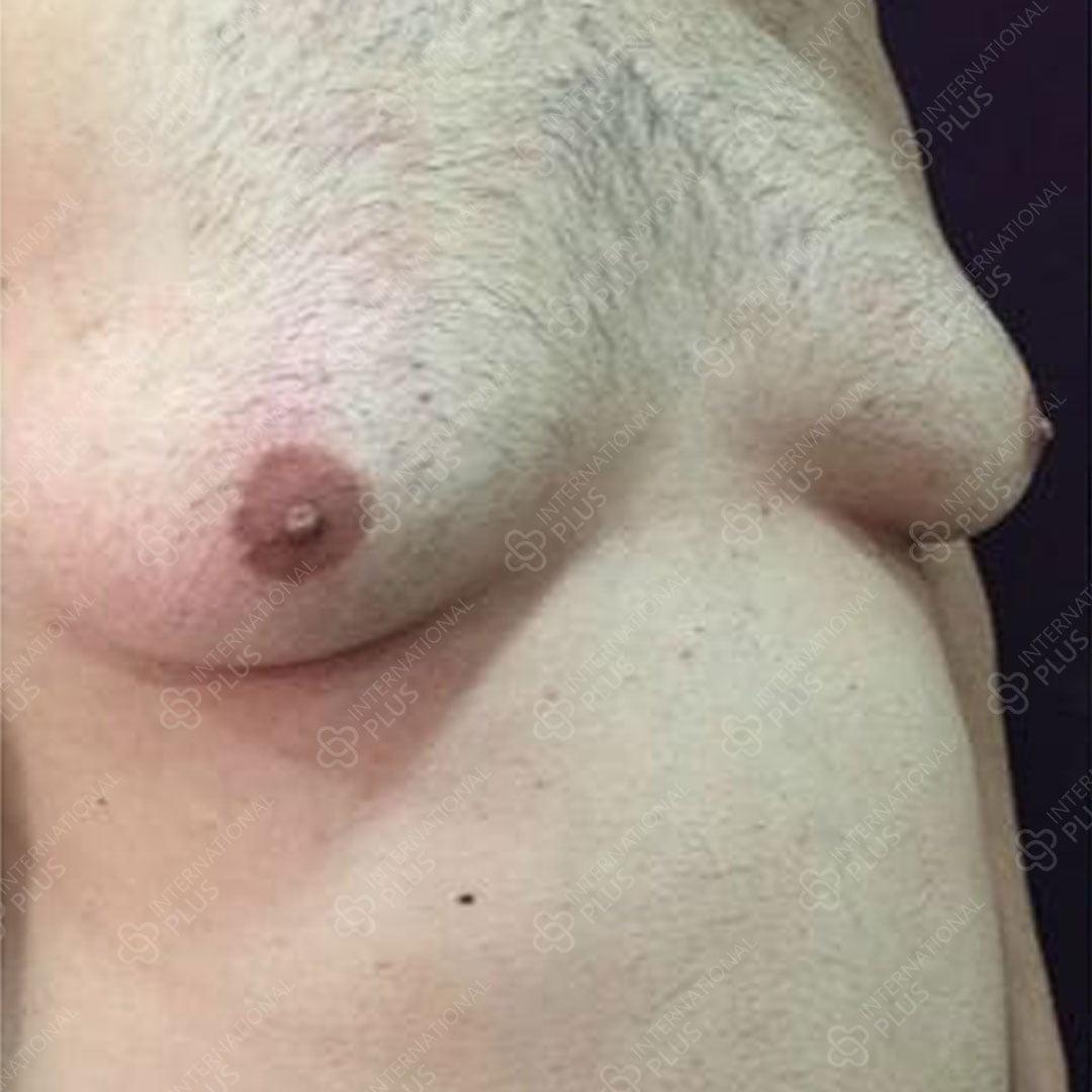 Gynecomastia 11