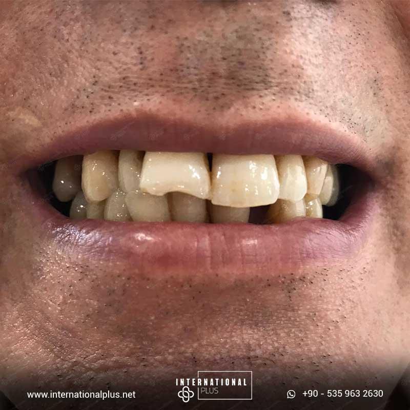 teeth in istanbul 90