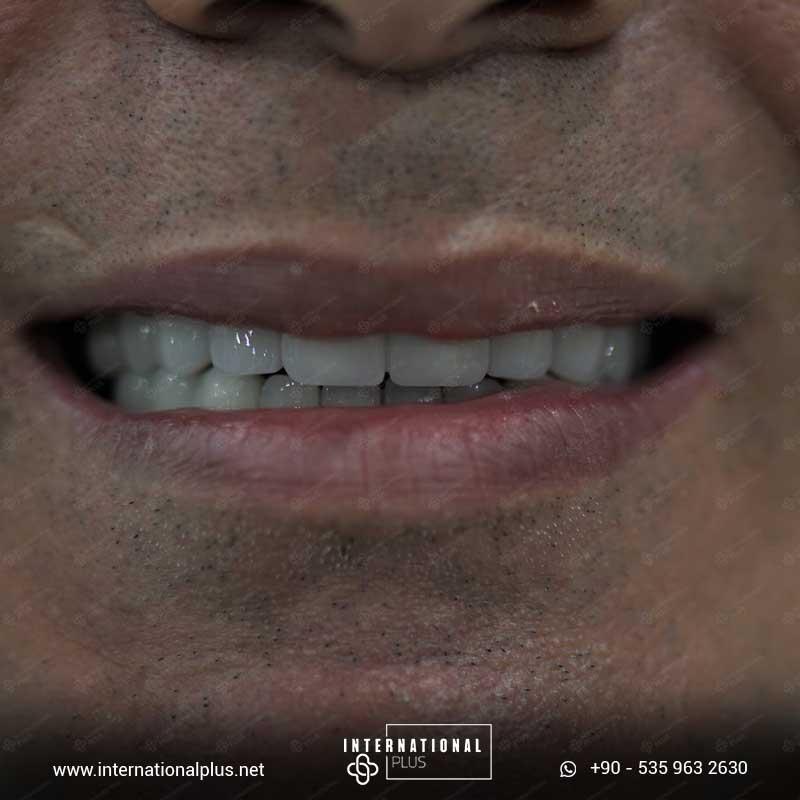 teeth in istanbul