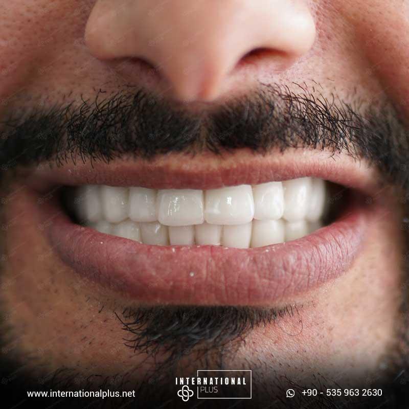 teeth in istanbul 42