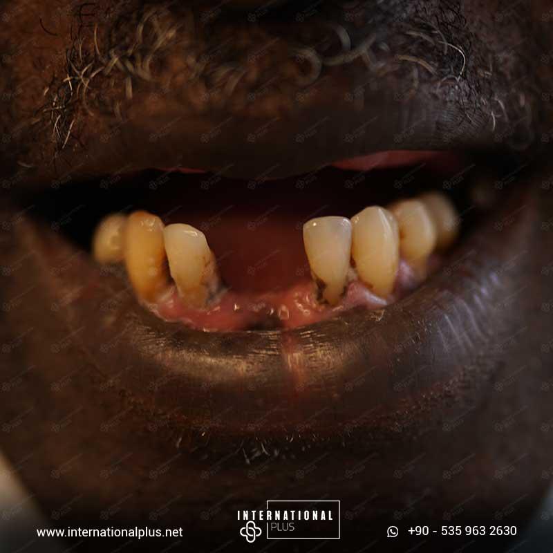 teeth in istanbul 44