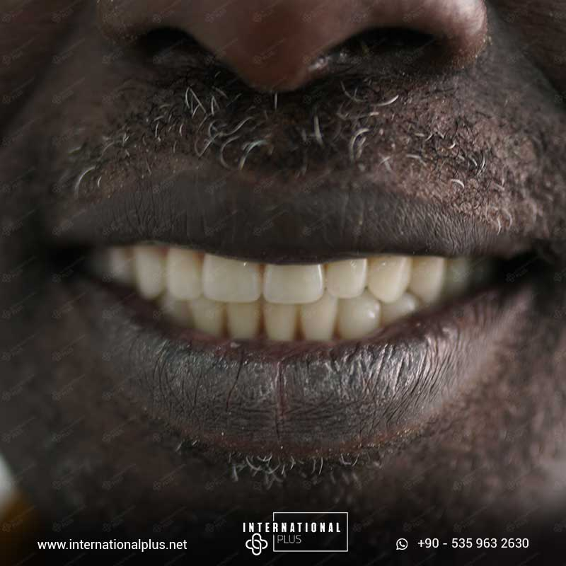 teeth in istanbul 333