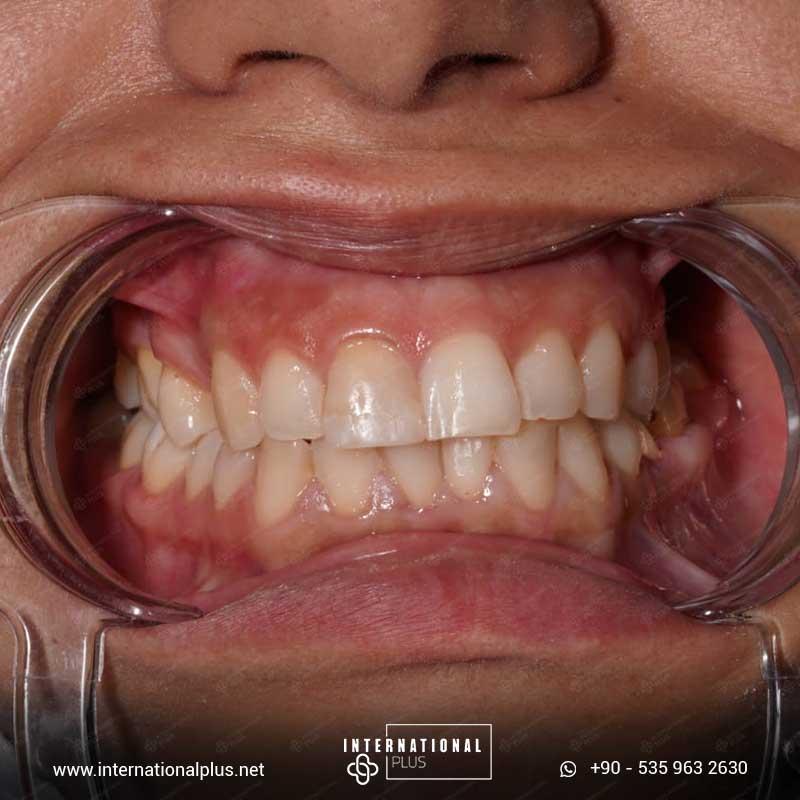 teeth in istanbul 87887