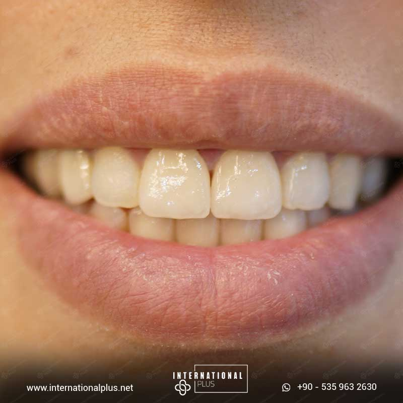 teeth in istanbul 1111